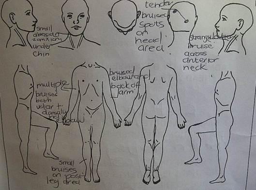 Medical diagram noting injuries